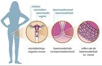 Baarmoederhalskanker: 5 eenvoudige preventietips
