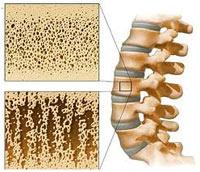 Osteoporose: hoe voorkomen of behandelen