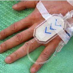 behandeling maagontsteking