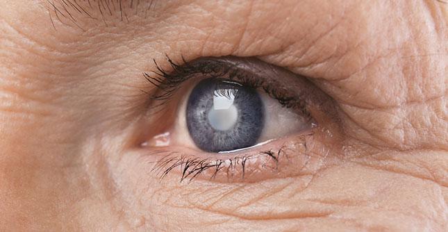 "Geef cataract (""staar"") geen kans"