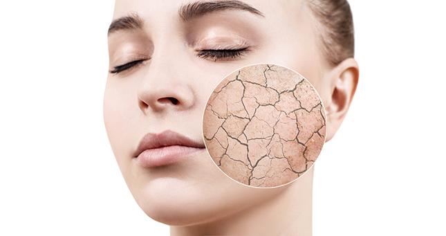 Droge huid: hoe voorkomen en/of behandelen?