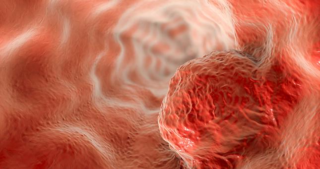 Wat je moet weten om slokdarmkanker te voorkomen en te bestrijden