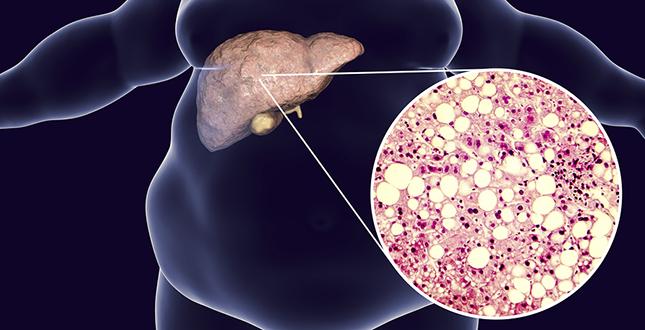 Vroege tekenen van leververvetting aangetroffen in bloed
